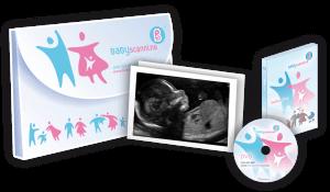 2D Baby Scan GLasgow